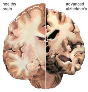 Alzheimer's disease View of Brain