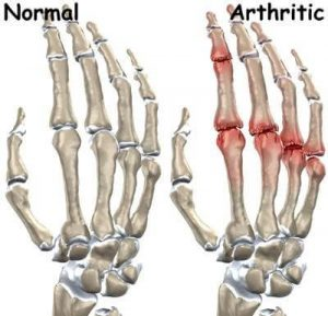 Arthritis image Normal vs Arthritic