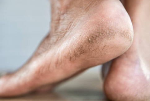 Cracked or Chapped Feet